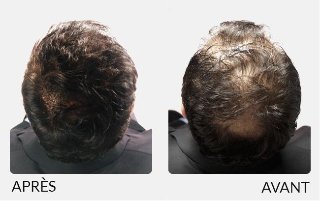 Poudre de cheveux pour homme